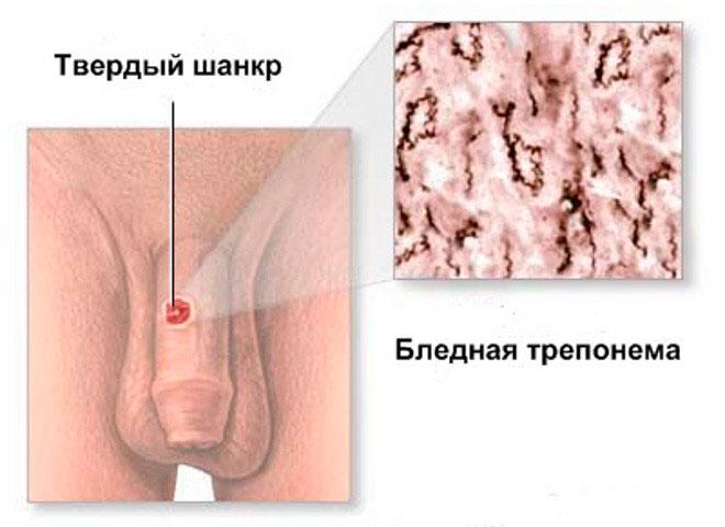 shankr-pri-sifilise
