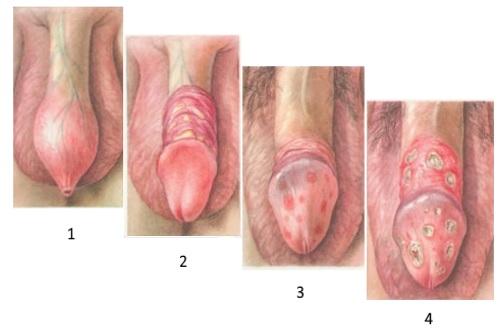 stadii-sifilisa-u-muzhchin