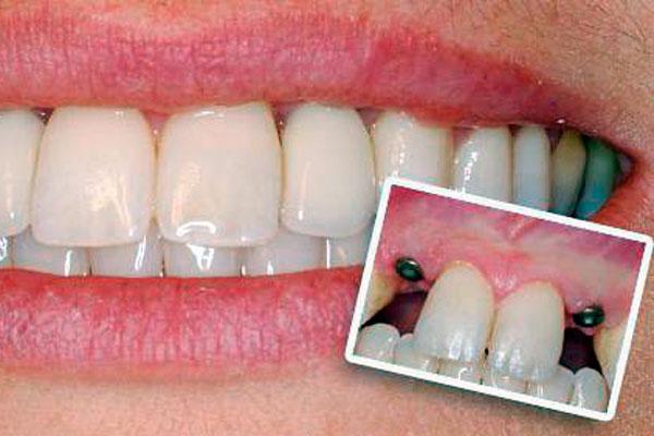 implantanty-zubov