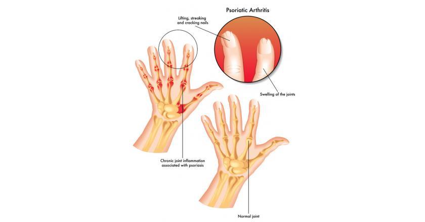 Псориатический артрит - признаки