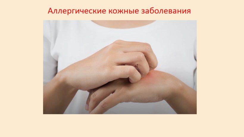 Аллергические кожные заболевания