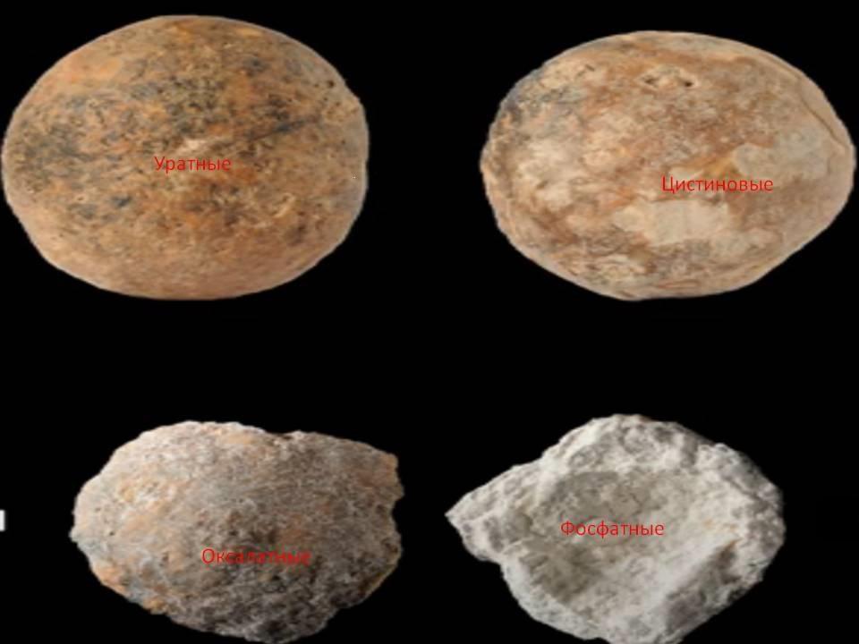 Типы почечных камней