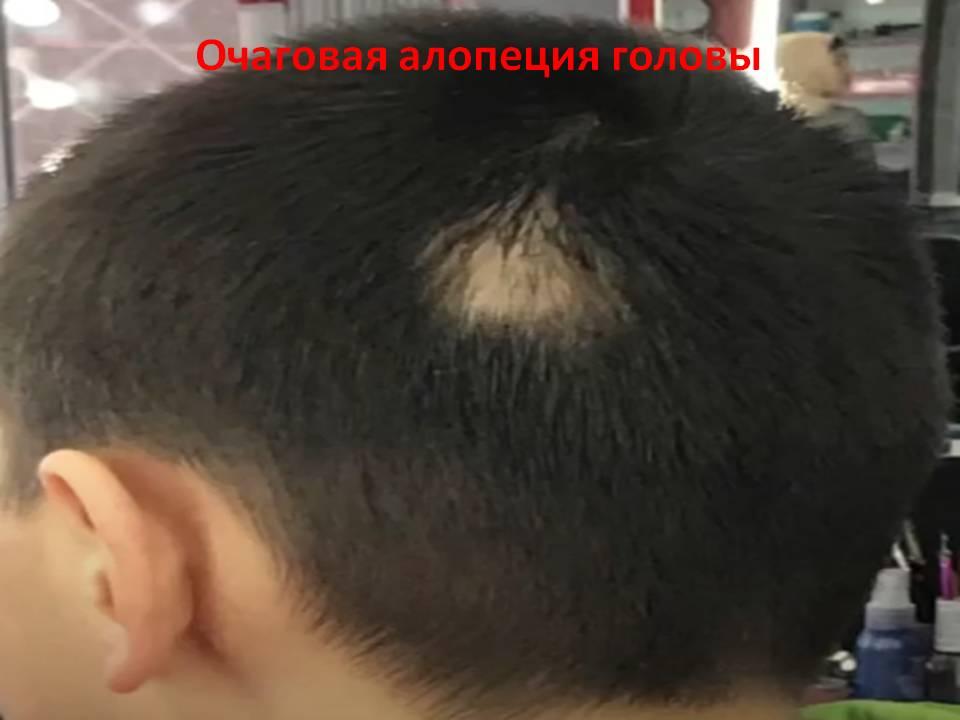 Очаговая алопеция головы