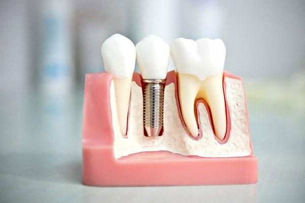 Имплантация зубов в Калининграде